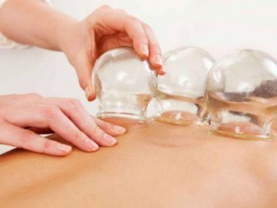 dry-cupping-massage